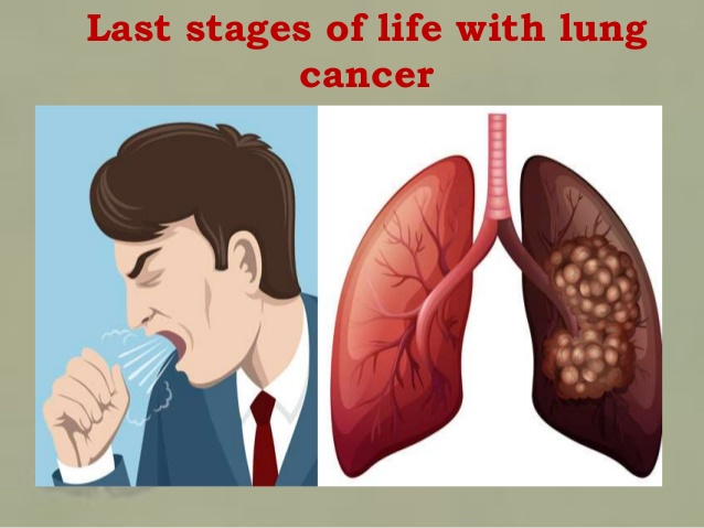 End Stage Lung Cancer
