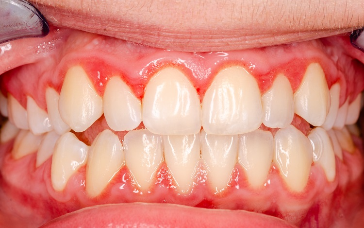 Treat Gum Disease
